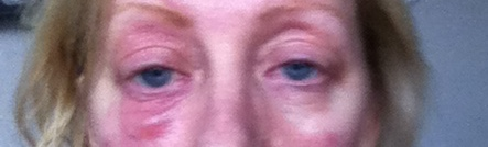image of Jules derrick eyes affected by makeup
