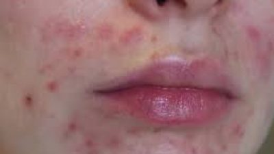 Adult Acne? Outsidethebox Products and Treatments could help